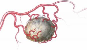 Uterine Fibroid embolization